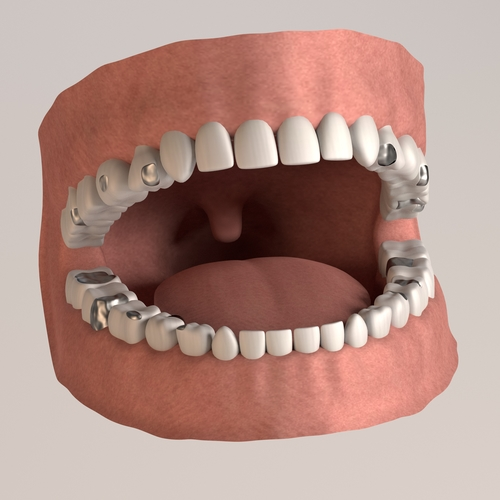 Dental filling is a treatment option for cracked tooth.