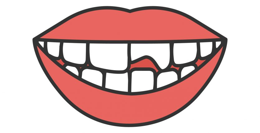 A chipped tooth is one reason to see a cosmetic dentist.