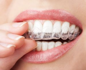 Your cosmetic dentist can fix some alignment issues easily.