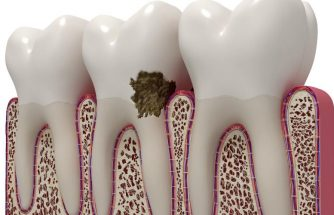 Is gum disease linked to other health problems?