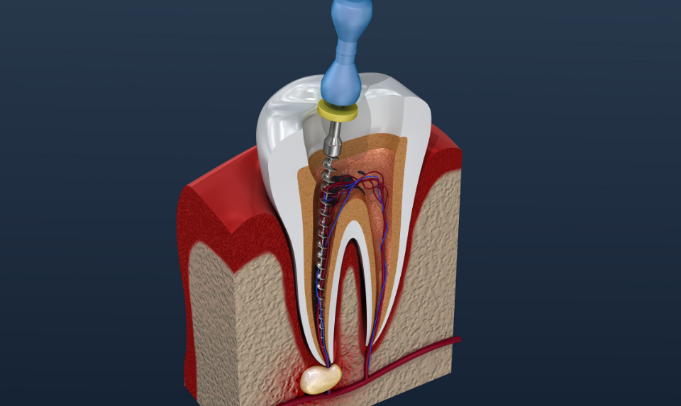 A severely decayed or infected tooth needs a root canal procedure.