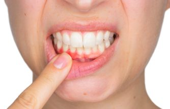 The best gum disease treatment is prevention - taking care of your oral health.