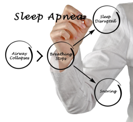 There are several symptoms of sleep apnea disorder.
